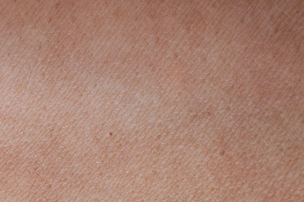 wat doen tegen droge huid